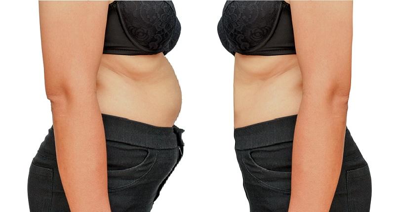 dieta de emergencia para deshinchar el abdomen