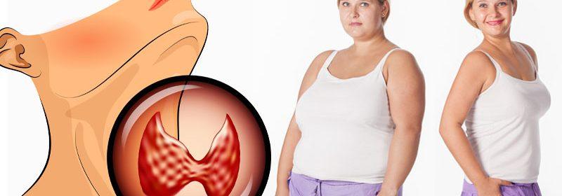 adelgazar-con-hipotiroidismo